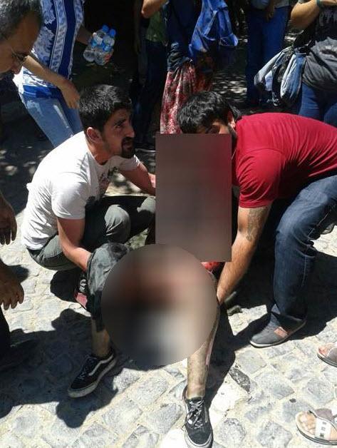 Σοκαριστικές Εικόνες!! Τουρκία: Λουτρό αίματος με 27 νεκρούς σε πολιτιστικό κέντρο από επίθεση αυτοκτονίας