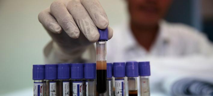 τεστ αίματος/Φωτογραφία: AP