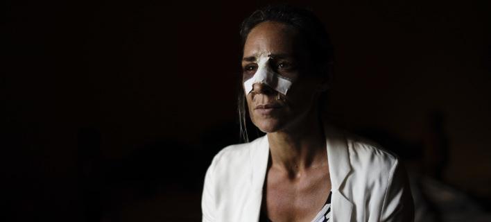 Δεν διαπιστώνεται κάποιο συγκεκριμένο προφίλ των δραστών που κακοποιούν γυναίκες, φωτογραφίες: AP images
