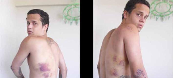 Θύματα βασανιστηρίων από το καθεστώς Μαδούρο μιλούν στο iefimerida – «Με βίασαν, μου έκαναν ηλεκτροσόκ, με μαστίγωσαν» [εικόνες]
