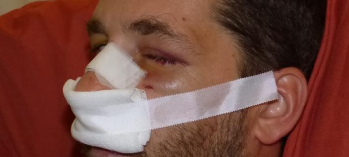Πολύ σοβαρά χτυπημένος 37χρονος Χανιώτης από Βρετανούς στρατιώτες [εικόνα]