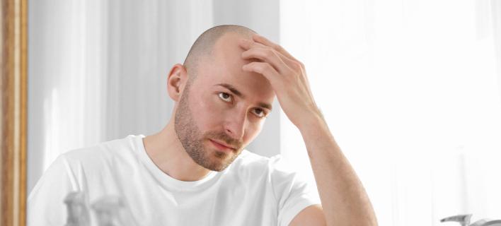 Φάρμακο για την οστεοπόρωση υπόσχεται θεραπεία κατά... της φαλάκρας