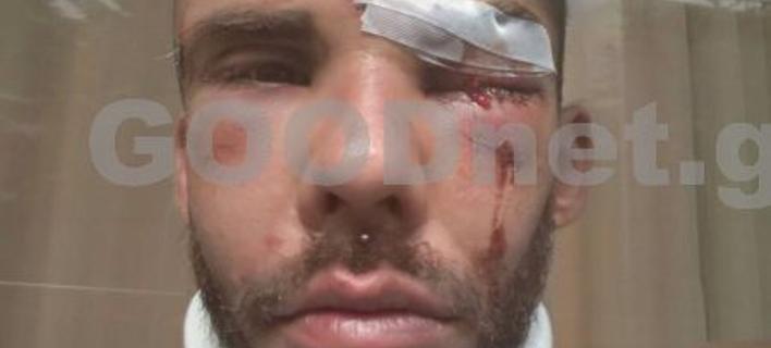 Ο 30χρονος φοιτητής μετά τον ξυλοδαρμό, Φωτογραφία: goodnet.gr
