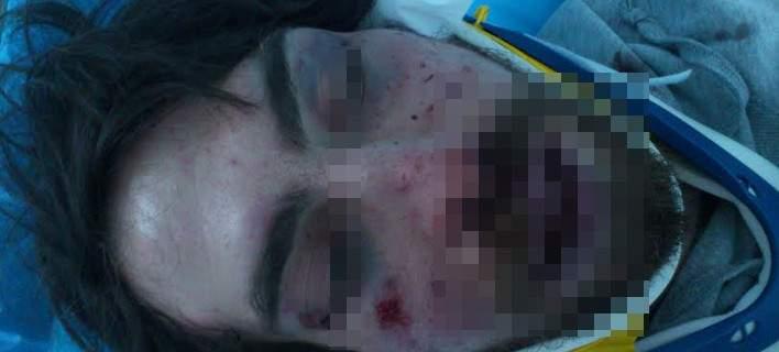 Συνέλαβαν Χρυσαυγίτη για τον άγριο ξυλοδαρμό του φοιτητή -Ενας από τους δράστες