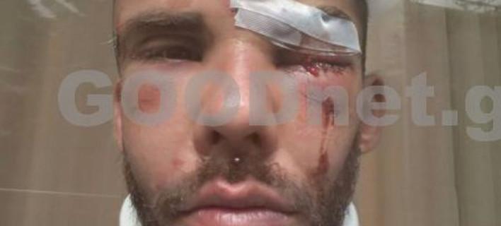 Σοκ: Ξυλοκόπησαν άγρια 30χρονο φοιτητή στο Ρέθυμνο [εικόνα & βιντεο]