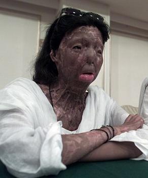 kameniprin 660 ΕΙΚΟΝΕΣ ΣΟΚ: Πακιστανή, θύμα επίθεσης με οξύ, αυτοκτόνησε από τον 6ο όροφο