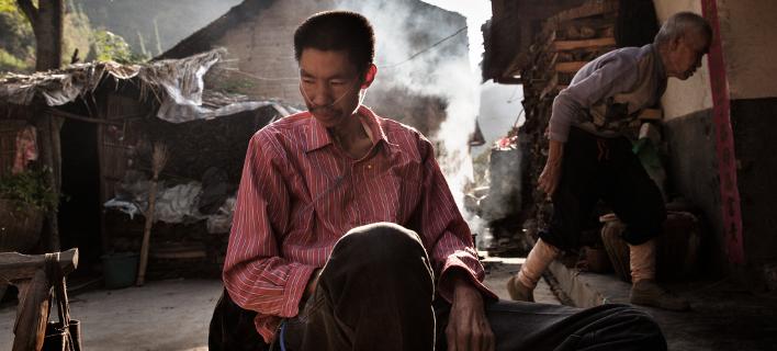 Το πραγματικό τίμημα του χρυσού στην Κίνα: Πρώην εργαζόμενοι στα ορυχεία ζουν με κατεστραμμένα πνευμόνια [εικόνες]