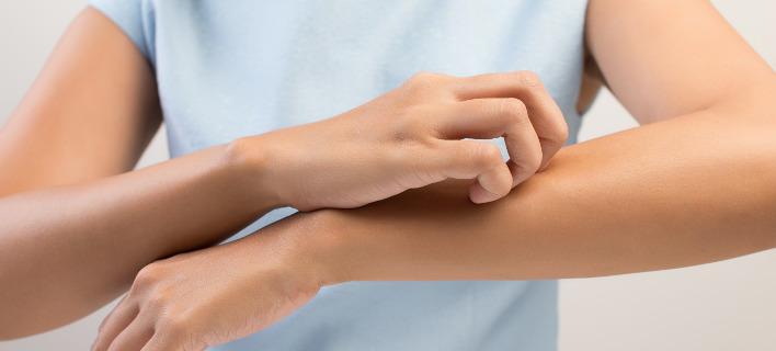 Γυναίκα που υποφέρει από κνησμό/ Φωτογραφία Shutterstock