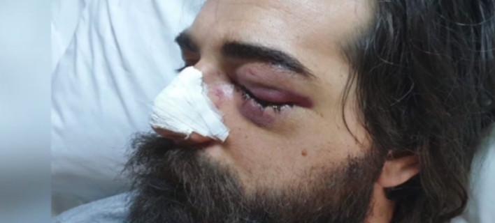 Σοκ: Φίλαθλος κινδυνεύει να χάσει το μάτι του από χτύπημα αστυνομικού στο ντέρμπι Παναθηναϊκός-Ολυμπιακός