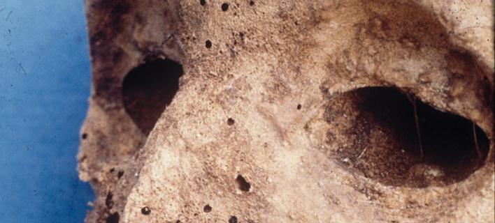 Εκαναν ανάλυση DNA σε μούμια παιδιού του 16ου αιώνα (Φωτογραφία: ΑΠΕ)
