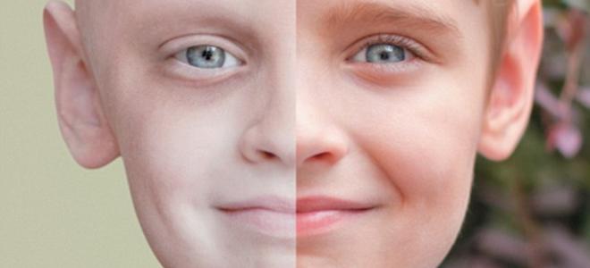 Αποτέλεσμα εικόνας για παιδικος καρκινος