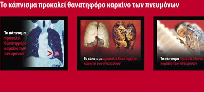 Eτσι θα κυκλοφορούν από την Παρασκευή τα πακέτα των τσιγάρων -Mε σοκαριστικές φωτογραφίες