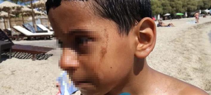 Αδιανόητο: Παιδιά κάνουν μπάνιο στον Αλιμο και βγαίνουν με πίσσες [εικόνες&βίντεο]