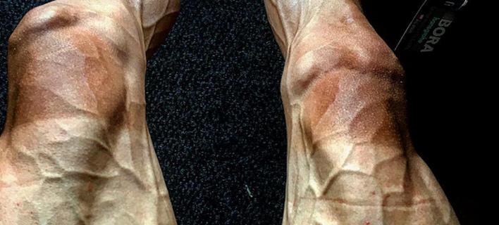 Συγκλονιστική εικόνα: Τα πόδια ενός ποδηλάτη μετά το Tour de France -Kαταπονημένα με τις φλέβες να πετάγονται