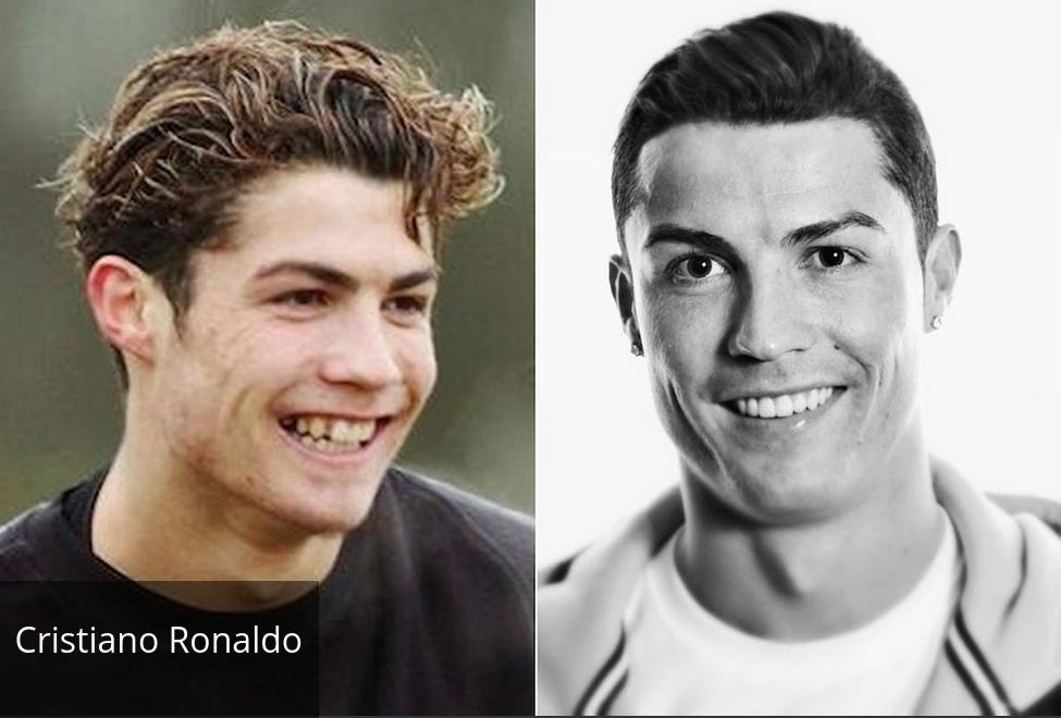 ronaldo 1 Τα ασχημόπαπα της σόουμπιζ που έγιναν κύκνοι: Ποιοι διάσημοι ήταν αγνώριστοι ως παιδιά [εικόνες]