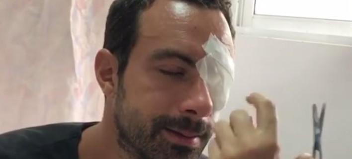 Ατύχημα για τον Σάκη Τανιμανίδη στον Αγιο Δομίνικο -Χτύπησε το μάτι του [βίντεο]