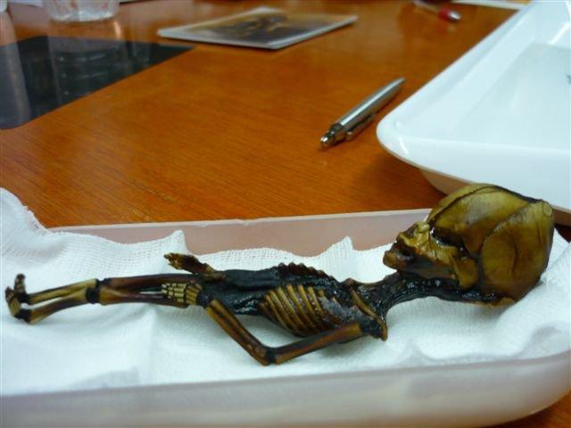 Φρίκαραν οι επιστήμονες! Βρέθηκε ανθρώπινος σκελετός «τσέπης» 15 εκ. με σπάνιες παραμορφώσεις [εικόνες]