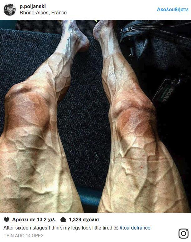 9011261076a Σοκάρουν τα πόδια ποδηλάτη πριν και μετά το γύρο της Γαλλίας ...