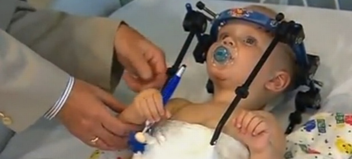 Ενα χειρουργικό θαύμα - 16 μηνών αγόρι υπέστη εσωτερικό αποκεφαλισμό και τα κατάφερε [εικόνες]