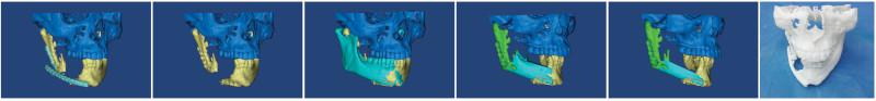 Στάδια Τρισδιάστατης Αποκατάστασης Κάτω Γνάθου: 3D απεικόνιση του ελλείμματος της γνάθου - 3D εικονική ανάπλαση της γνάθου - 3D εικονική προσομοίωση μικροχειρουργικής αποκατάστασης της γνάθου - 3D εκτύπωση.