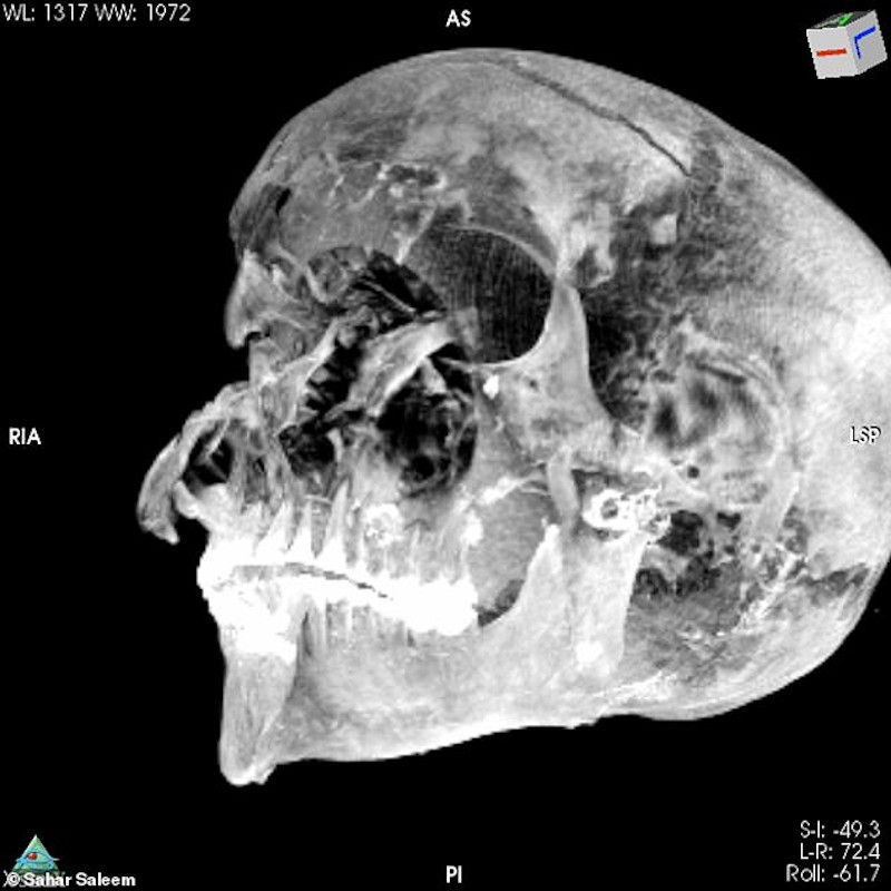 CT mummy pharaoh