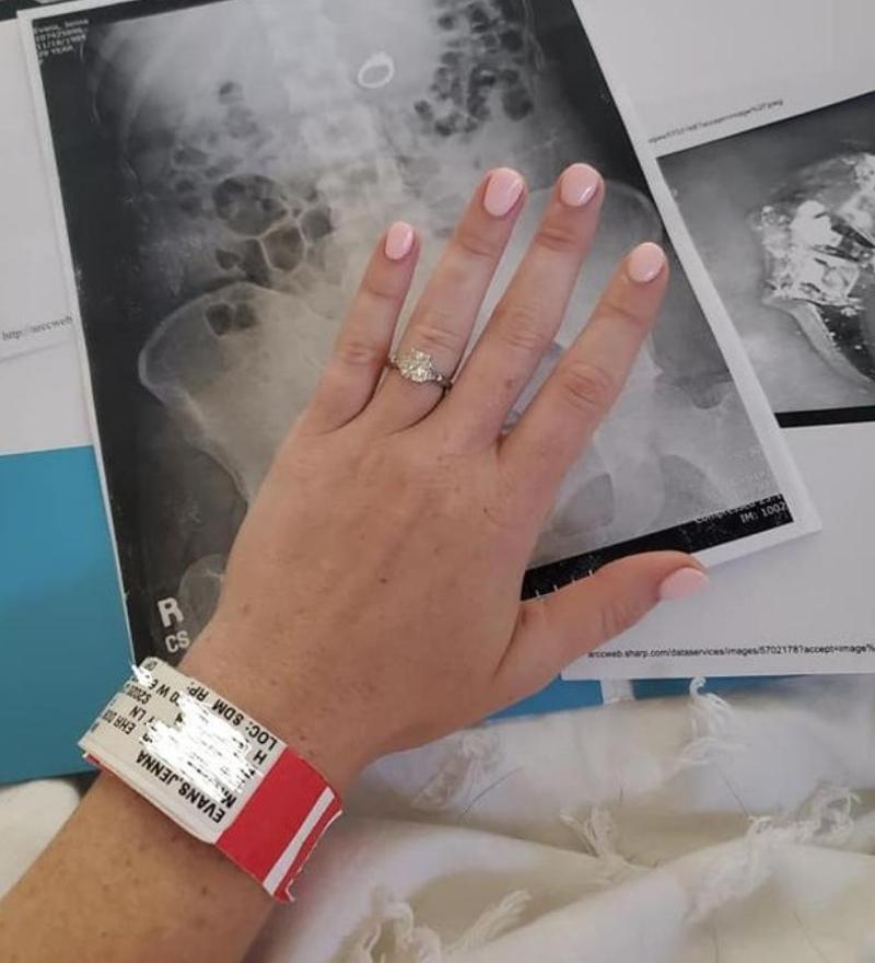H Tζίνα Έβανς στο νοσοκομείο, δείχνει το δακτυλίδι των αρραβώνων που της αφαίρεσαν οι γιατροί από την κοιλιακή της χώρα.
