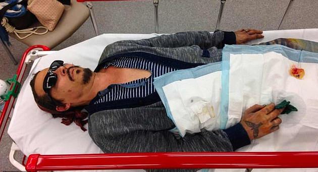 Η φωτογραφία με τον αιμόφυρτο Τζόνι Ντεπ και το κάψιμο στο μάγουλό του, που δημοσίευσε το The Blast