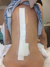 Νεαρή 27 ετών με σκολίωση, η οποία αντιμετωπίστηκε με ρομποτική χειρουργική από τον Δρ. Λυκίσσα. Εικόνα πριν και εικόνα 24 ώρες μετά το χειρουργείο