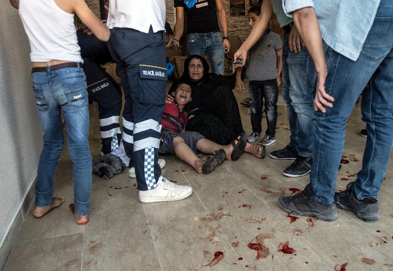 Πρώτες βοήθειες σε ένα παιδί που χτυπήθηκε από όλμους σε χωριό της Τουρκίας-