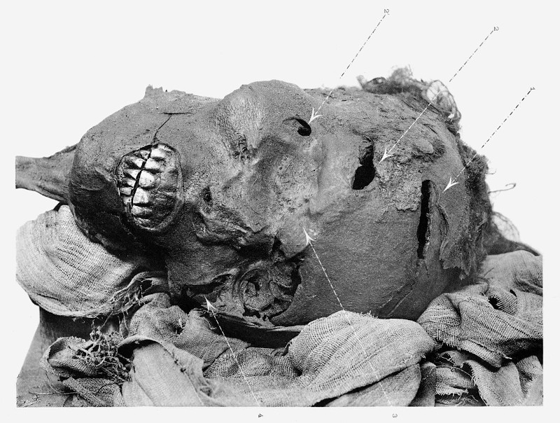 H βαλσαμωμένη κεφαλή του φαραώ  Seqenenre Tao, όπου διακρίνονται τα τραύματα που του κατάφεραν οι εχθροί.