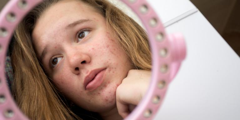 κορίτσι με ακμή κοιτάζεται στον καθρέφτη