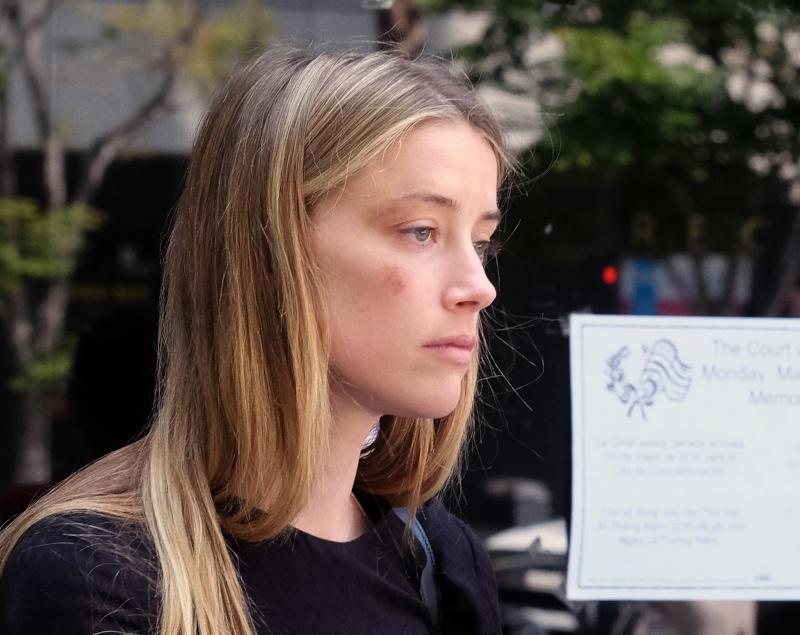 Η Άμπερ Χερντ με μελανιές στο πρόσωπο μετά από υποτιθέμενη επίθεση από τον Τζόνι Ντεπ