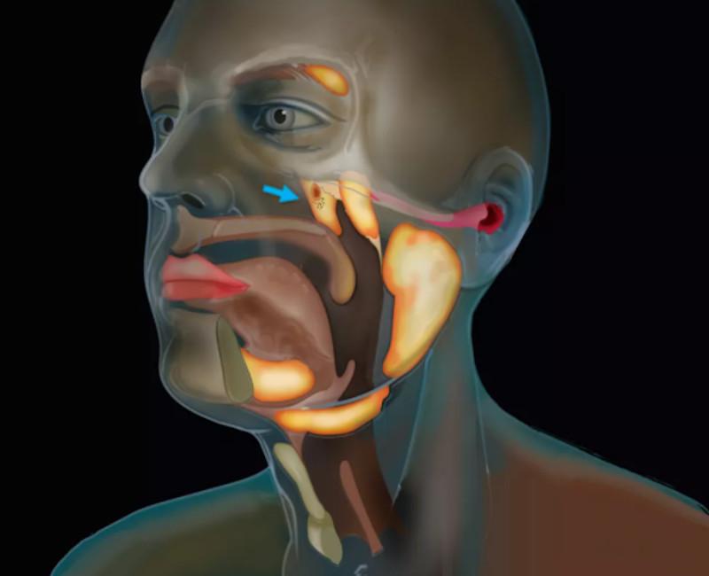 Επιστήμονες ανακάλυψαν νέο όργανο στον ανθρώπινο λαιμό