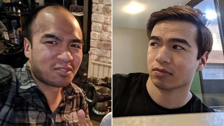 Ο Saul Trejo, πριν και μετά την εμφύτευση μαλλιών που έκανε στην Ταϊλάνδη