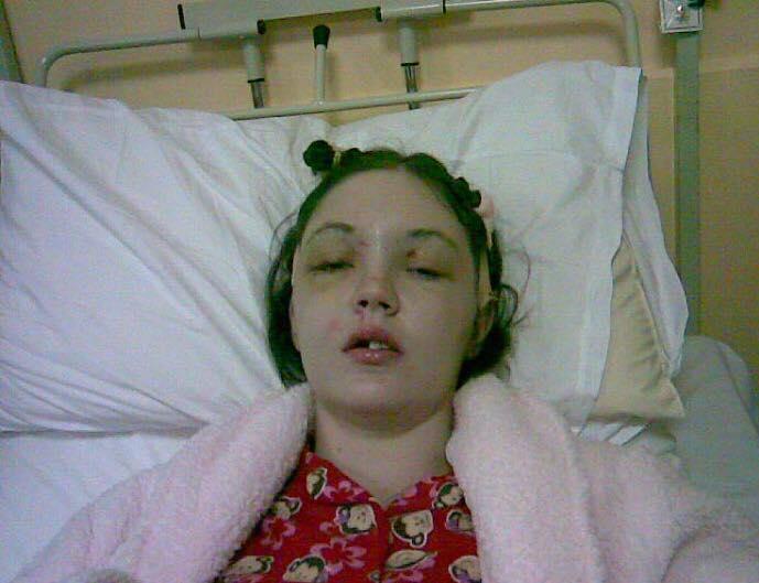 Η Γκρέιν στο νοσοκομείο