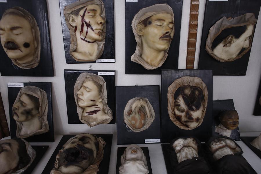 Κέρινα ομοιώματα που αναπαριστούν διάφορες βλάβες και κακώσεις που έχουν προκληθεί σε εγκλήματα και αποτελούν εκθέματα του Εγκληματολογικού Μουσείου της Ιατρικής Σχολής του Πανεπιστημίου Αθηνών