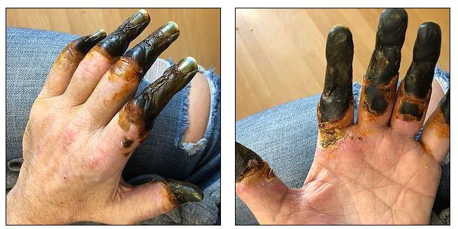 Η κυκλοφορία του αίματος δεν έφτανε στα χέρια και τα δάχτυλά του και έγιναν μαύρα