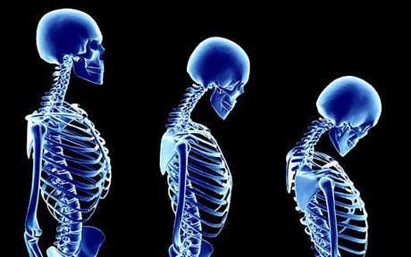 Osteostrong μπλε σκελετός