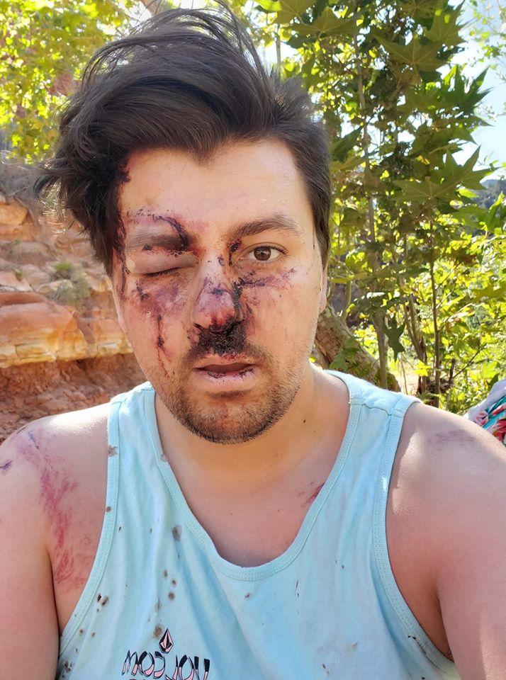 Ο 24χρονος Τζέικομπε Βελάρντε αναρρώνει από τα τραύματά του