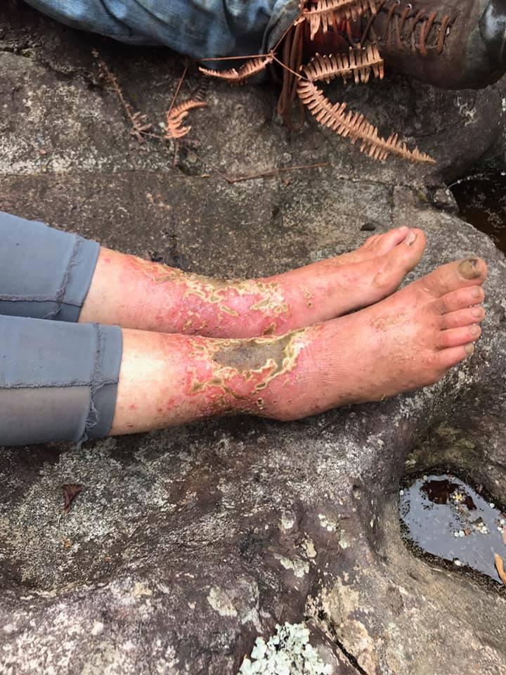 Τα τραυματισμένα πόδια της Αμάντα Έλερ