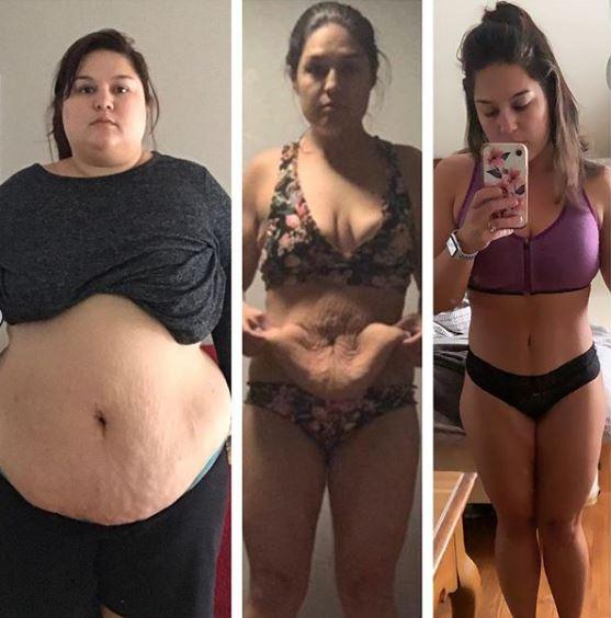 H 31χρονη αποφάσισε να κάνει επέμβαση στο στομάχι όταν τρόμαξε με αυτό που έδειξε η ζυγαριά το 2017