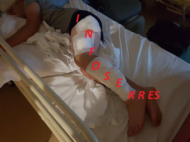 0 9χρονος φέρει σοβαρά τραύματα σε όλο του το σώμα