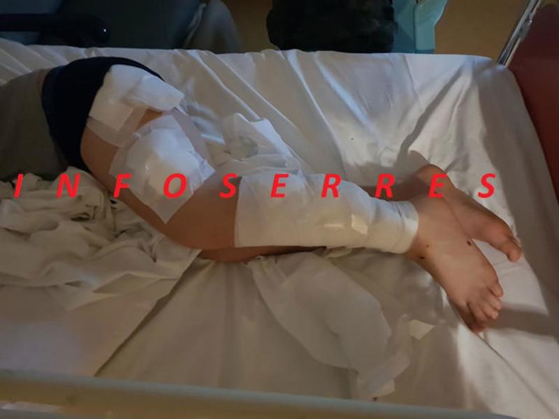 Ο μαθητής μεταφέρθηκε στο Γενικό Νοσοκομείο Σερρών