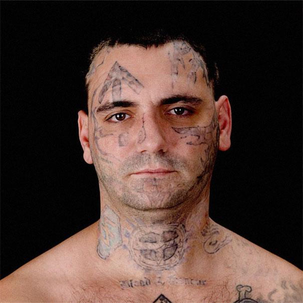 Νεοναζιστής δείχνει τα σημάδια από την αφαίρεση των τατουάζ στο πρόσωπό του