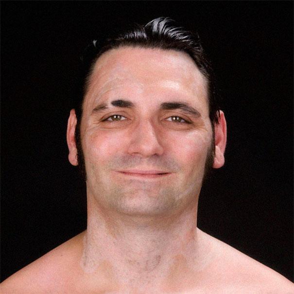 Ο πρώην νεοναζιστής ποζάρει χαμογελαστός μετά την αφαίρεση των τατουάζ