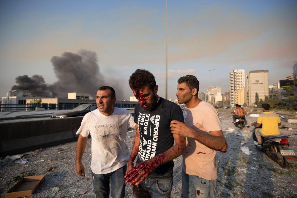 Πολίτες βοηθούν τραυματία στη Βηρυτό