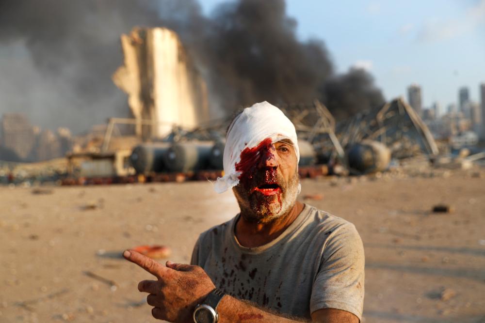 Ανδρας με αίματα και γάζα στο κεφάλι μετά από έκρηξη στη Βηρυτό