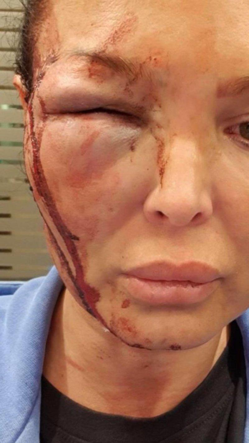 Η Μαντώ Τζαβάρα μετά τον ξυλοδαρμό με αίματα