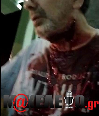 Στέφανος Χίος: Πού στρέφονται οι έρευνες της Αστυνομίας -«Kλειδί» η κατάθεση του δημοσιογράφου